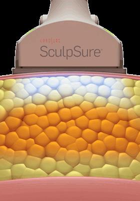 Воздействие лазера Скалпшур на жир