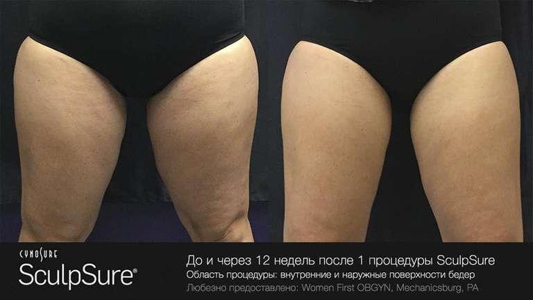 Убрать жир на внутренней и наружной поверхности ног SculpSure, Скалпшур