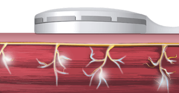 Электромагнитное поле вызывает потенциал действия в мышце
