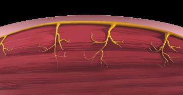 Повышение тонуса мышцы