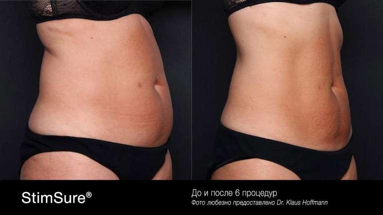 Женский живот. Электромагнитная стимуляция StimSure, фото до и после 6 процедур Стимшур